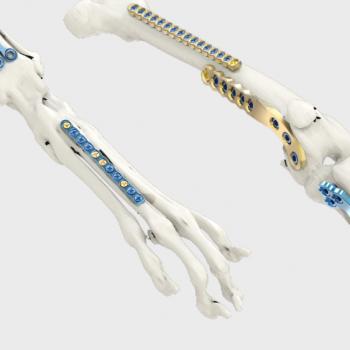 Tornillos & Placas Osteosíntesis Arix